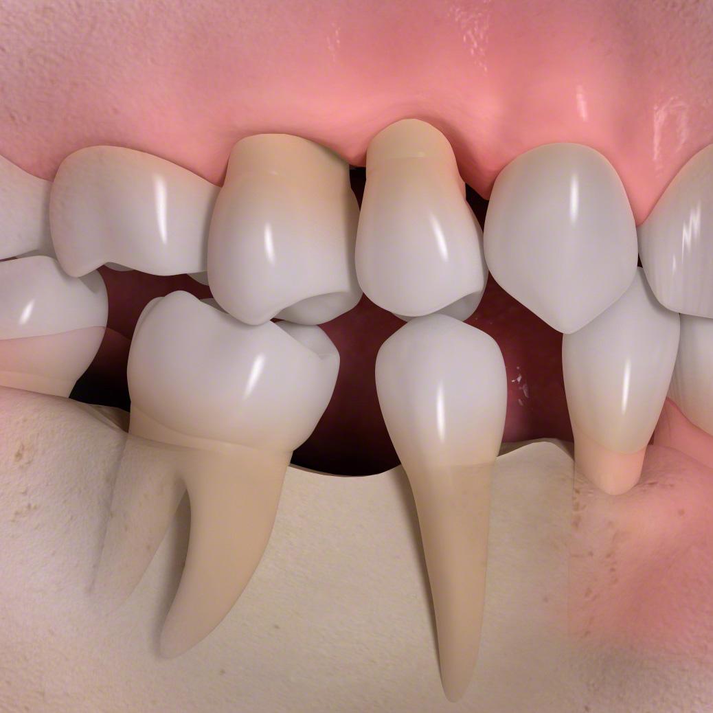Récession gingivale et migrations dentaire dues à la parodontite